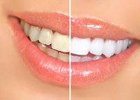 Teeth Whitening Newmarket ON